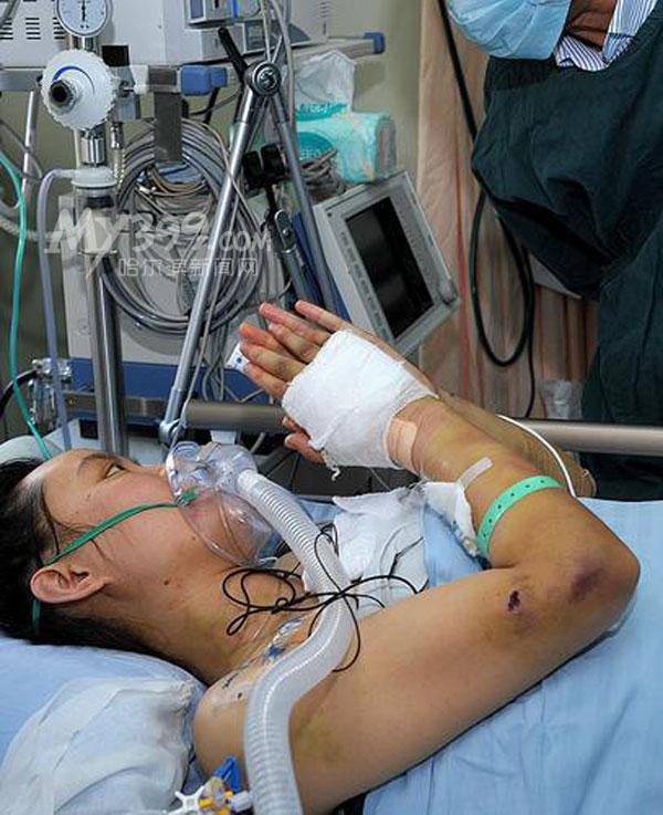 的张丽莉最新病情发布会上获悉,明日起专家将为张丽莉的上肢高清图片